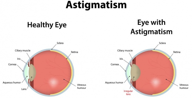 what_is_astigmatism