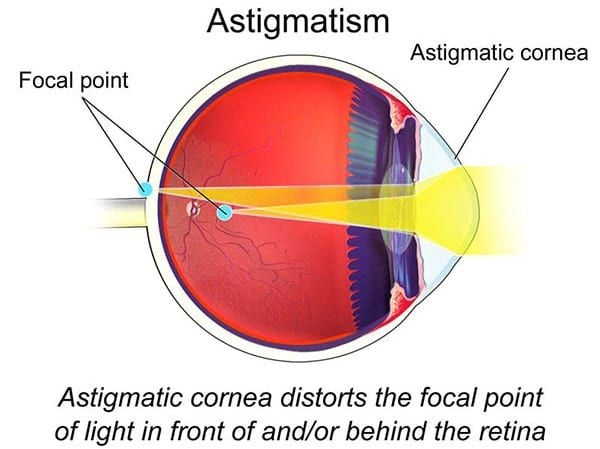 causes_symptoms_and_treatment_for_astigmatism