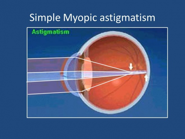 common_causes_of_astigmatism