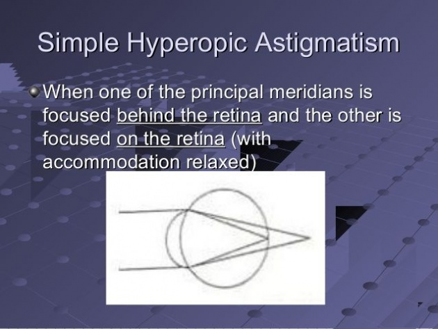 what_are_the_symptoms_of_astigmatism