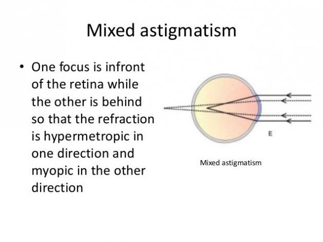 symptoms_of_astigmatism