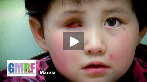 Afghanistan's War Torn Children - Marzia